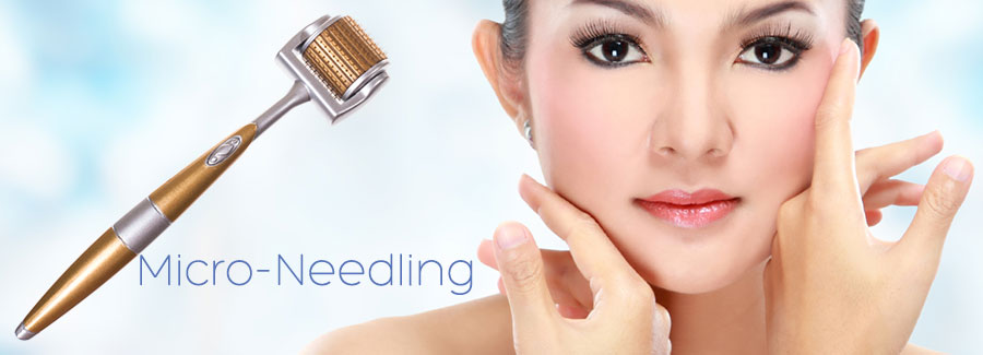 Microneedling Treatment for Acne Scars in Hamilton