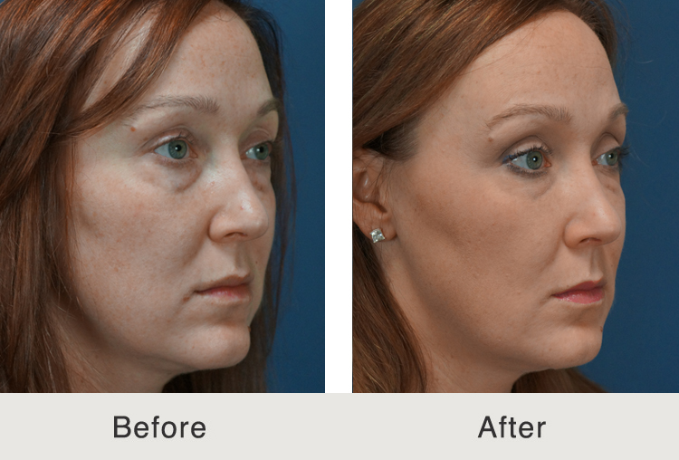 Full Facial Filler
