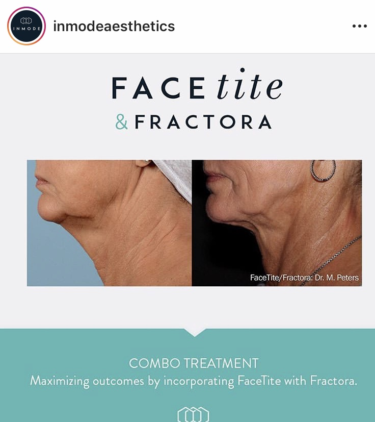 Skin Resurfacing -InMode Fractora