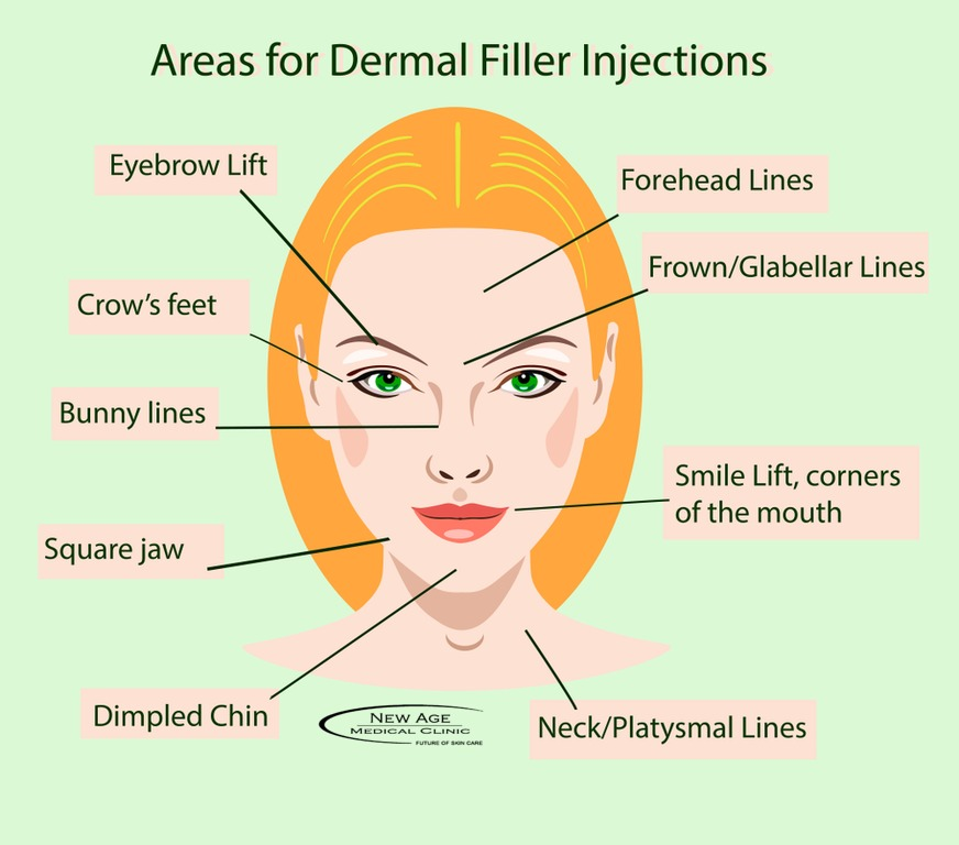 Dermal Fillers and Botox Treatment in Hamilton