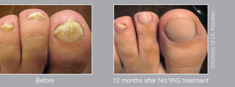 LASER PODIATRY, NAIL FUNGUS, CALLUS AND WART REMOVAL