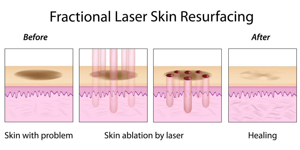 Benefit from Laser Skin Resurfacing