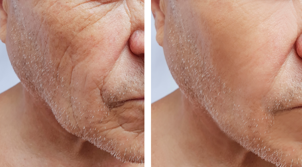 Skin Rejuvenation & Skin Resurfacing hamilton