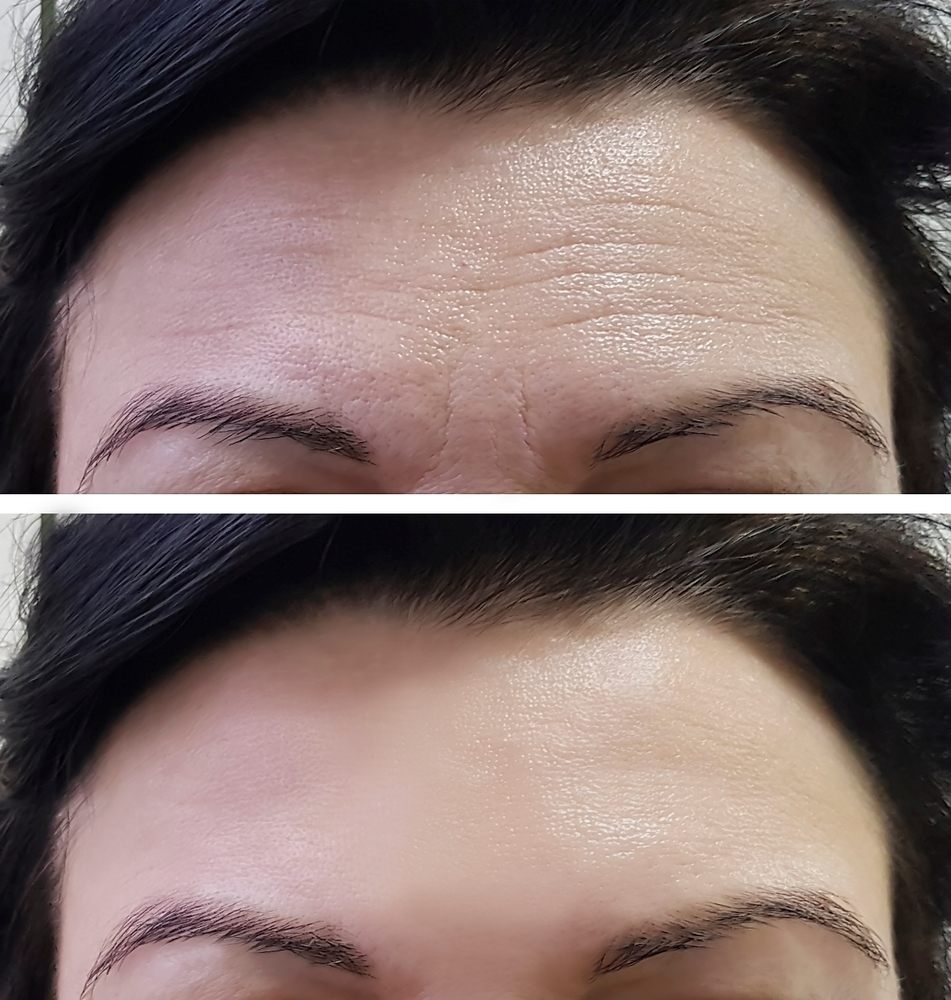 botox treatment hamilton